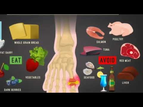 How To Get Rid Of GOUT PAIN | Natural ayurvedic home remedies for gout | Gout Flare Ups